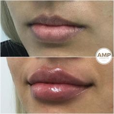 First time dermal filler for this young woman ml lip dermal filler to balance Upper to lower lips proportions , project and lift upper lips . Thank you for letting me share your results Face Fillers, Dermal Fillers, Natural Lip Plumper, Natural Lips, Lip Job, Facial Procedure, Aesthetic Dermatology, Botox Cosmetic, Facial Aesthetics