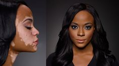 "This beautiful womans' story inspired me. Cheri has vitiligo. I think she is beautiful with and without make up. In one photo she is a classic beauty~ in the other, she has a unique and mesmerizing beauty that is undeniable! Embrace your ""flaws"". Love your 'flaws'. The things that make you uniquely you, are the things that make you beautiful!♥"