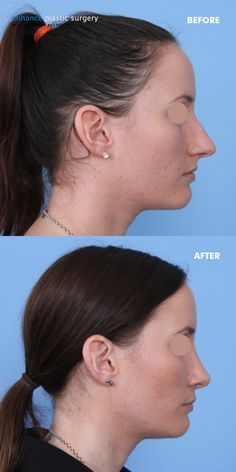 RHINOPLASTY: Another beautifully refined nose by Dr Broadhurst - To enquire about Rhinoplasty (Nose Job) with Dr Andrew Broadhurst in Brisbane or the Sunshine Coast area, click the image.