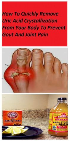 How To Quickly Remove Uric Acid Crystallization From Your Body To Prevent Gout And Joint Pain is part of Gout remedies Gout is a form of inflammatory arthritis manifested by recurrent attacks of a r - Arthritis Remedies, Headache Remedies, Bunion Remedies, Arthritis Exercises, Natural Health Remedies, Natural Cures, Herbal Remedies, Home Remedies For Gout, Health Tips
