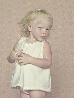 Gustavo Lacerda - albinos