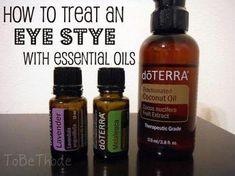 Treat eye stye naturally #FaceScrubHomemade Essential Oils For Stye, Essential Oil Uses, Pure Essential, Easential Oils, Doterra Essential Oils, Doterra Blends, Treating A Stye, Eye Stye Remedies, Natural Remedies