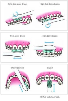 Here\'s a helpful brushing chart for those of you who have braces!   For more tips, visit www.teethfairies.com!