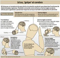 """Ictus, también conocido como infarto y hemorragia cerebral. Coloquialmente como congestión, trombosis en el cerebro y """"paralís"""" Más información en: http://vsearch.nlm.nih.gov/vivisimo/cgi-bin/query-meta?v%3Aproject=medlineplus-spanish&query=accidente+cerebrovascular"""