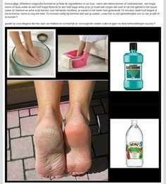 Easy way to remove calluses from feet: 15 minutes, 1 cup of warm water, 1/2 cup of Listerine, 1/2 cup of white vinegar