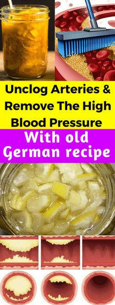 Unclog Arteries & Remove The High Blood Pressure & Just 4 Tablespoons!!! - All What You Need Is Here