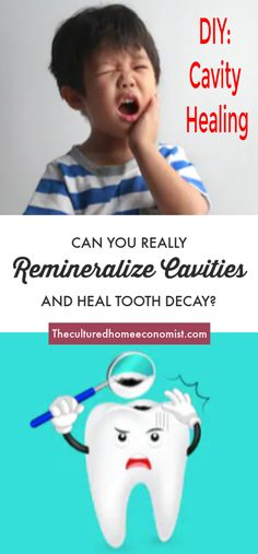 How to remineralize cavities - Oral Care Cavities In Kids, Heal Cavities, Dental Health, Oral Health, Health Care, Health Advice, Heal A Cavity Naturally, Dental, Health