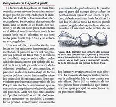 terapia de liberación de puntos gatillo miofasciales para la prostatitis