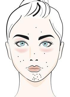Das sagen Hautprobleme über dich aus