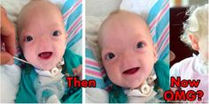 Baby Born Without Nose Is Very Cute (6 pics)