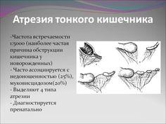 Атрезия тонкой кишки: 14 тыс изображений найдено в Яндекс.Картинках