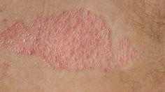 Psoríase - Tratamento Natural (caseiro) - A psoriaseé uma afecção de pele caracterizada por descamação epidérmica, provocada pela inflamação da derme, que pode observar. Tratamento Natural caseiro.