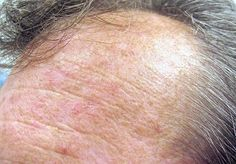 - 10 Best Actinic Keratosis Home Treatment