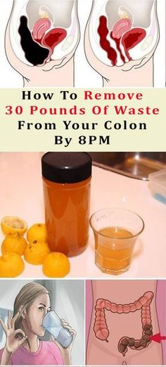 How To Remove 30 Pounds Of Waste From Your Colon By 8PM #health #beauty #colon #diy #remedy #beautyblogger #weightloss #fat #fatloss