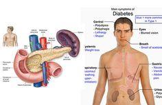 5 Surprising Symptoms of Diabetes