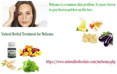 Natural Herbal Treatment for Melasma