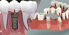 Chào bác sĩ! Cho em hỏi là nên làm cầu răng hay Implant thì tốt nhất ạ? Em bị mất răng nhưng đang phân vân không biết là nên chọn cách nào mới tốt và dài lâu. Em muốn có răng giả chắc khỏe và có tuổi thọ như răng thật thì càng tốt ạ, tốn kém bao nhiêu cũng được. Mong bác sỹ cho em lời khuyên ạ! (Phùng Thanh Phương – Ninh Bình).