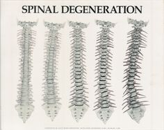 Spinal degeneration and age are not synonymous.   http://ifhp360.com/The_Institute_for_Human_Potential/Products.html