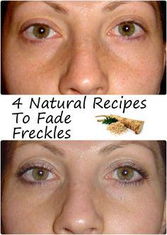 4 Natural Recipes To Fade Freckles | Beauty Tutorials