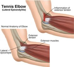 The inflamed extensor tendon in the elbow is what causes tennis elbow or Lateral Epicondylitis What Causes Tennis Elbow, Tennis Elbow Relief, Hand Therapy, Massage Therapy, Physical Therapy, Occupational Therapy, Tennis Elbow Exercises, Extensor Muscles, Elbow Pain