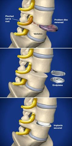 Total disc replacement relieves the pain caused by pinched nerves or discogenic pain in the lumbar spine by replacing a diseased or damaged disc with specialized metal and polyethylene implants. Back Surgery, Spine Surgery, Radiculopathy, Pinched Nerves, Back Pain Remedies, Degenerative Disc Disease, Spinal Stenosis, Spine Health, Anatomy And Physiology