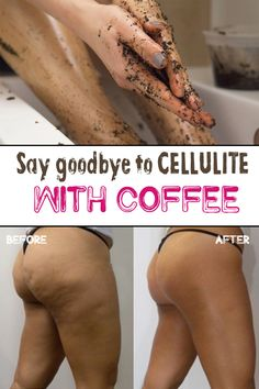 Most of women dream of a stunning skin, without imperfections and most important of all: without facing the eternal problem of cellulite. Unfortunately, cellulite is a skin condition with underlyin… Cellulite Exercises, Cellulite Remedies, Beauty Skin, Health And Beauty, Home Remedies, Natural Remedies, Orange Peel Skin, Coffee Cellulite Scrub, Coffee Scrub