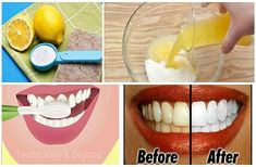 Simple way to whiten your teeth naturally! Everyone wants to have pearly white teeth, like the people we see in