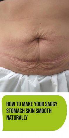 How To Make Your Saggy Stomach Skin Smooth Naturally - Health 360 Magazine your health and fitness # Tighten Stomach, Tighten Loose Skin, Lower Stomach, Flat Stomach, How To Slim Down, How To Get Rid, How To Remove, How To Make, Skin Firming Lotion