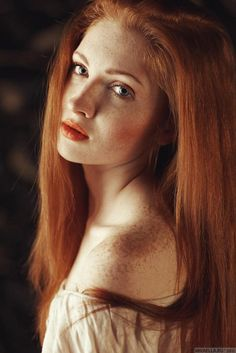 Red hair and freckles.