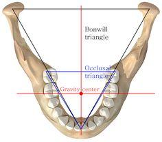 bonwill triangle에 대한 이미지 검색결과