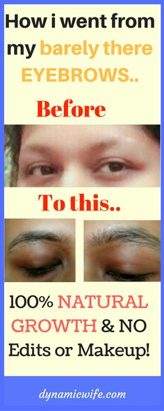 I grew up with barely there invisible eyebrows most of my life, until jamaican black castor oil (jbco) came to my rescue. My before and after photos.