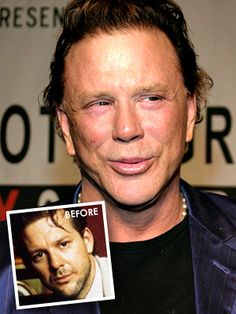 then and now Mickey Rourke