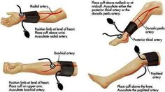 Places to take Blood Pressure