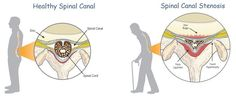 Spinal stenosis is the narrowing of the space in the spinal canal which can put pressure on the spinal cord and nerves that travel through the spine. Chronic Pain, Fibromyalgia, Cauda Equina Syndrome, Spinal Canal, Spinal Stenosis, Spine Health, Back Pain Exercises, Spinal Cord, Rheumatoid Arthritis