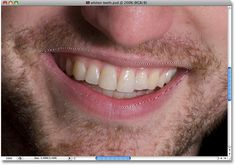 how to whiten teeth in photoshop elements