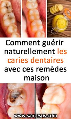 How to naturally cure dental caries with these home remedies, . Health Facts, Oral Health, Dental Health, Health Care, Gm Diet Plans, Oral Surgery, Oral Hygiene, Home Remedies, Chocolate