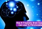 How A Traumatic Brain Injury Can Lead To Fibromyalgia