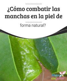 ¿Cómo combatir las manchas en la piel de forma natural?  Podemos emplear la cebolla de forma tópica para combatir las manchas y regenerar la piel. Al ser rica en azufre y vitamina C, su jugo también nos ayuda a reducir las arrugas