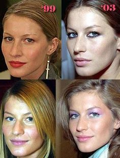 6 photos of Gisele Bundchen before and after plastic surgery. The 2 types of cosmetic surgery she's had include: nose job and breast implants. Gisele Bundchen is a 39 year old. Botox Before And After, Celebrities Before And After, Gisele Bündchen, Gisele Model, Cool Skin Tone, Good Skin, Celebrity Plastic Surgery, Cool Hair Color, Hair Colors