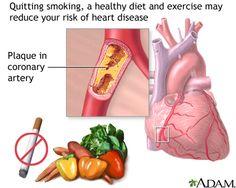 atherosclerosis - CVD