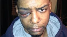 Second Brooklyn Hasid Cleared in 2013 Attack on Gay Black Man