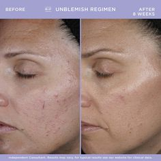 Rodan And Fields, Adult Acne Treatments, Teenage Acne, Clear Pores, Acne Marks, Broad Spectrum Sunscreen, Acne Prone Skin