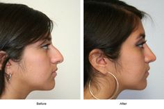 Nose Surgery Ensures Improved Facial Symmetry and Balance Nose Plastic Surgery, Nose Surgery, Rhinoplasty Surgery, Modern Shed, Shed Design, Facial, Cosmetics, Beautiful, Beauty