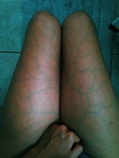 blue veins in leg #10