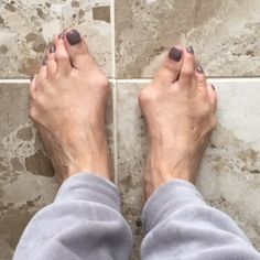Whatever the size or severity, it's important to understand the myths, causes and facts about bunions! Let's embrace National Bunion Day and talk about our feet!