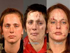 The shocking before and after pictures of meth addicts - warning: disturbing images