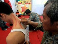 Enam Mitos Orang Sakit di Indonesia