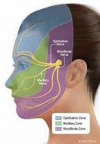 Bildergebnis für trigeminal neuralgia