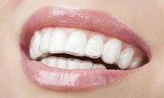 Elegant Dental Crown Design #dentalImplants #DentalCrownPorcelain Dental Veneers, Dental Braces, Dental Implants, Dental Care, Dental Group, Teeth Braces, Dental Health, Spa, Invisible Braces