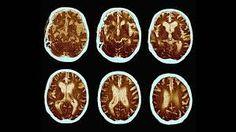 Výsledek obrázku pro demence obrázek